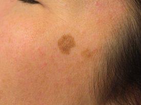 Lesiones Solares en la Piel